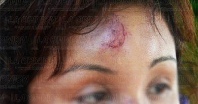 Ebrio taxista golpeó a su esposa