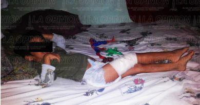 Niño lesionado en resbaladilla