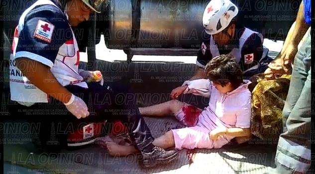 VIDEO: Camión arrolla a mujer y le destroza el brazo