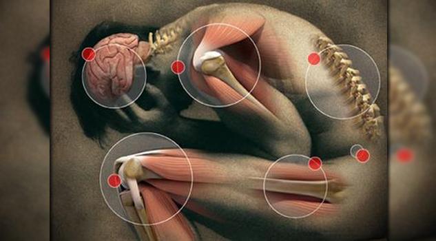 Dolores del cuerpo podían ser contraídos por el cerebro