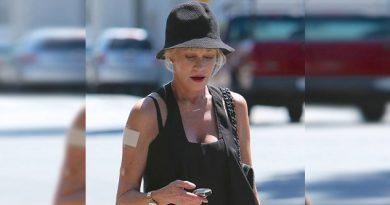 Adiós tatuaje; Melanie Griffith borra su recuerdo