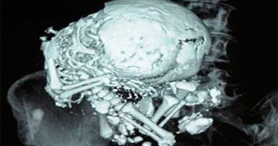 Los extraños casos de los bebés petrificados Litopedia