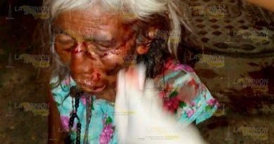 Mujer sufre Aparatosa Caída