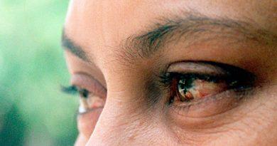¿Te pican los ojos con frecuencia? Podrías tener conjuntivitis