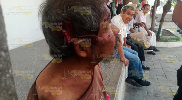 Ebrio Sufre Aparatosa Caída Tuxpan