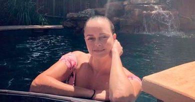 Shaila Dúrcal Sufre Accidente Pierde Parte De Un Dedo