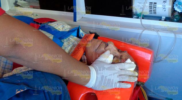 Octagenario es embestido por motociclista en Álamo