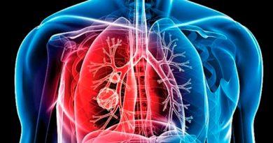 Reportan 2 mil casos de tuberculosis en Veracruz