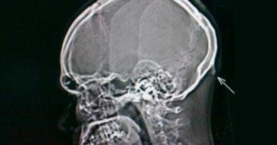 Por culpa del celular, a los humanos les está saliendo una espina en el cráneo