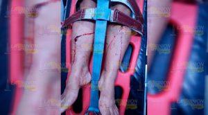 Violento atraco en Papantla deja 2 personas lesionadas