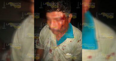 Lesionan a jornalero y le roban 5 mil pesos cerca de la comunidad El Arenal