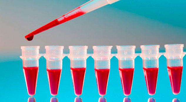 Identifican anticoagulante que retrasa la aparición del Alzheimer